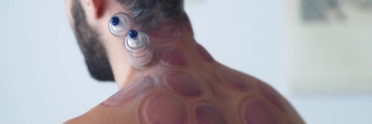 Cupping on Neck & shoulders